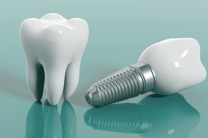 implant-nedir-nasil-uygulanir