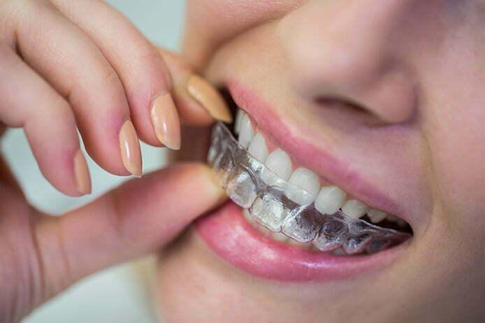 Ortodonti Tedavisinde Şeffaf Plak Dönemi